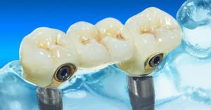Freiendversorgung mit einem Implantat
