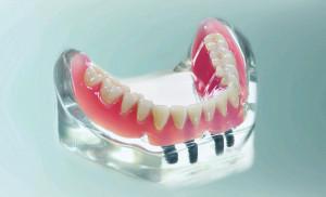 Verankerung für herausnehmbaren Zahnersatz